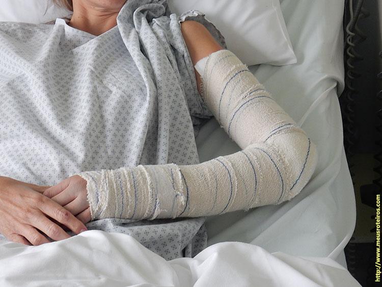 Braço imobilizado antes da cirurgia